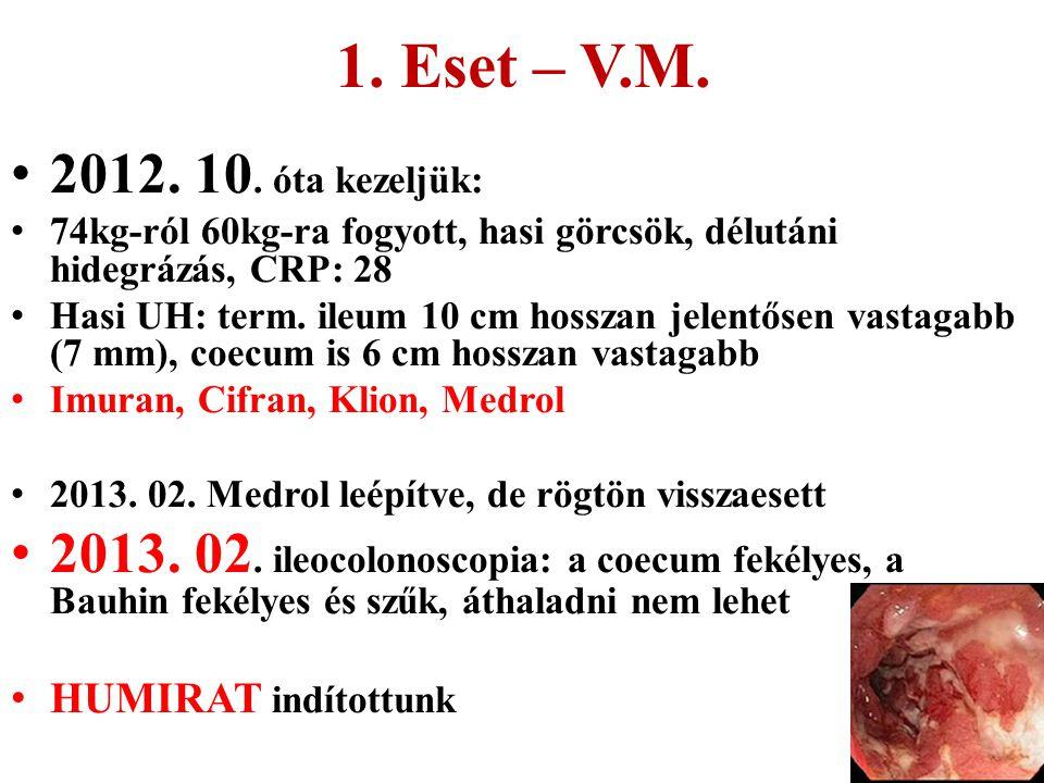 1. Eset – V.M. 2012. 10. óta kezeljük: 74kg-ról 60kg-ra fogyott, hasi görcsök, délutáni hidegrázás, CRP: 28 Hasi UH: term. ileum 10 cm hosszan jelentő