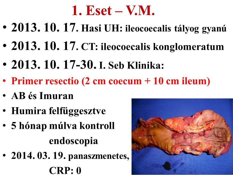 2013. 10. 17. Hasi UH: ileocoecalis tályog gyanú 2013. 10. 17. CT: ileocoecalis konglomeratum 2013. 10. 17-30. I. Seb Klinika: Primer resectio (2 cm c