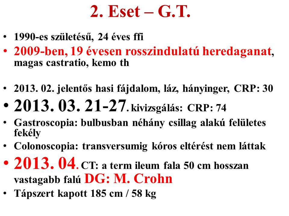 2. Eset – G.T. 1990-es születésű, 24 éves ffi 2009-ben, 19 évesen rosszindulatú heredaganat, magas castratio, kemo th 2013. 02. jelentős hasi fájdalom