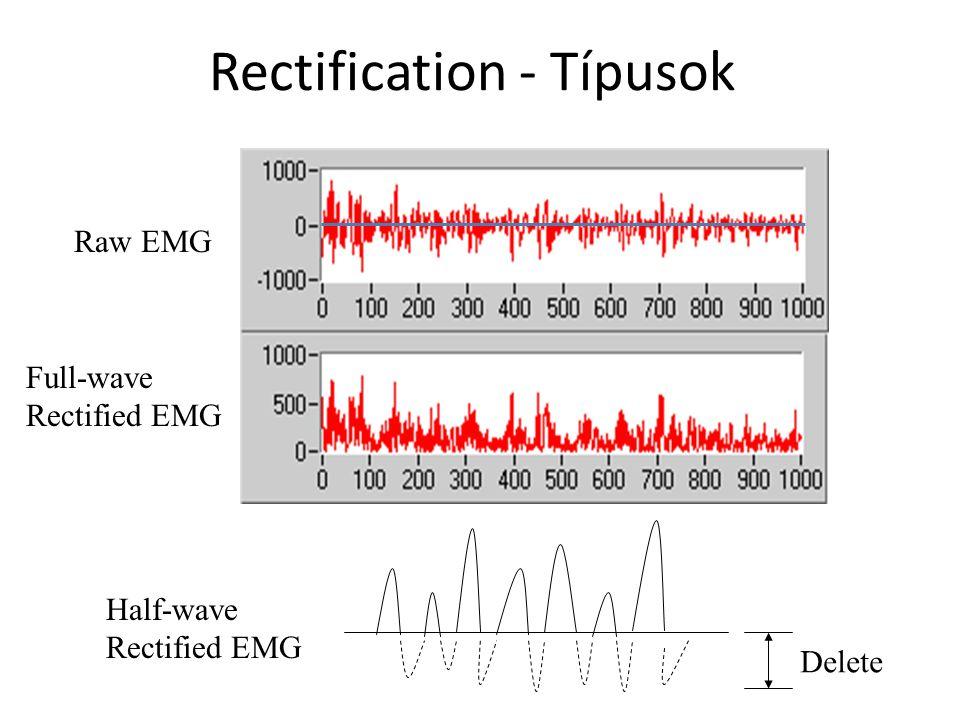Példa: EMG rektifikálása