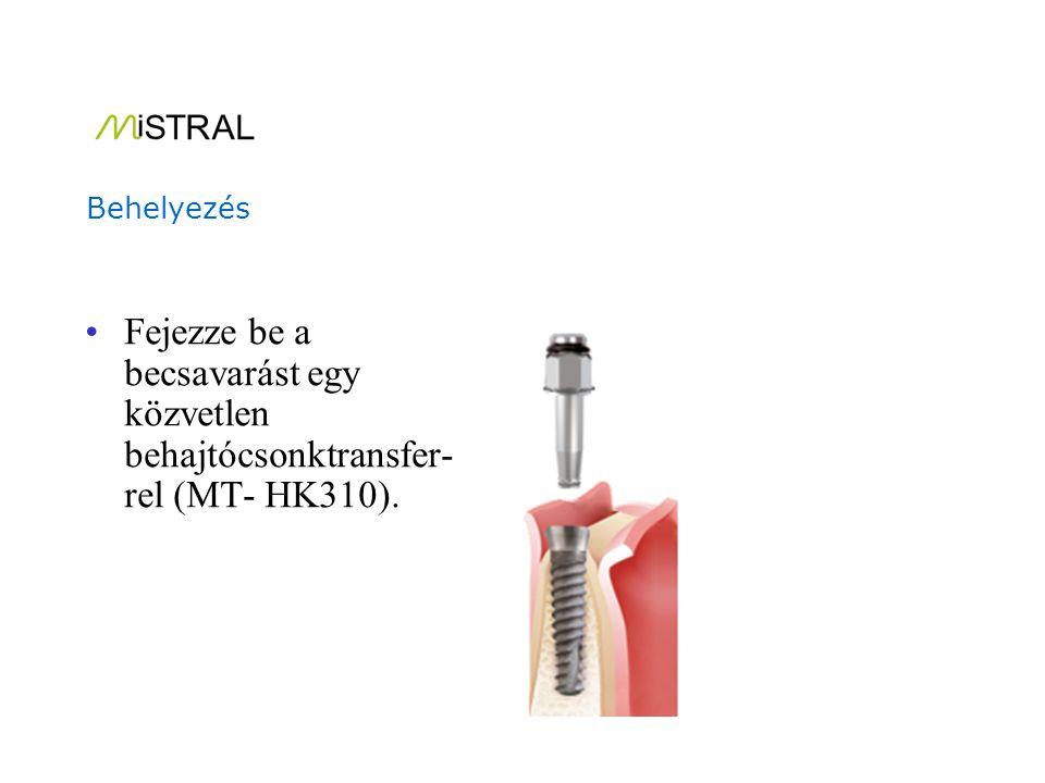 Sűrű csont esetén, ajánlott eltávolítani a combo behajtócsonkot az implantátum részleges beültetése után.