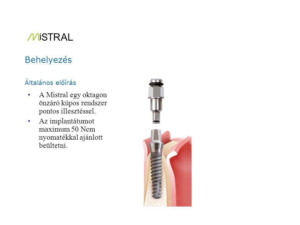 A MISTRAL implantátum beültetési eljárása.