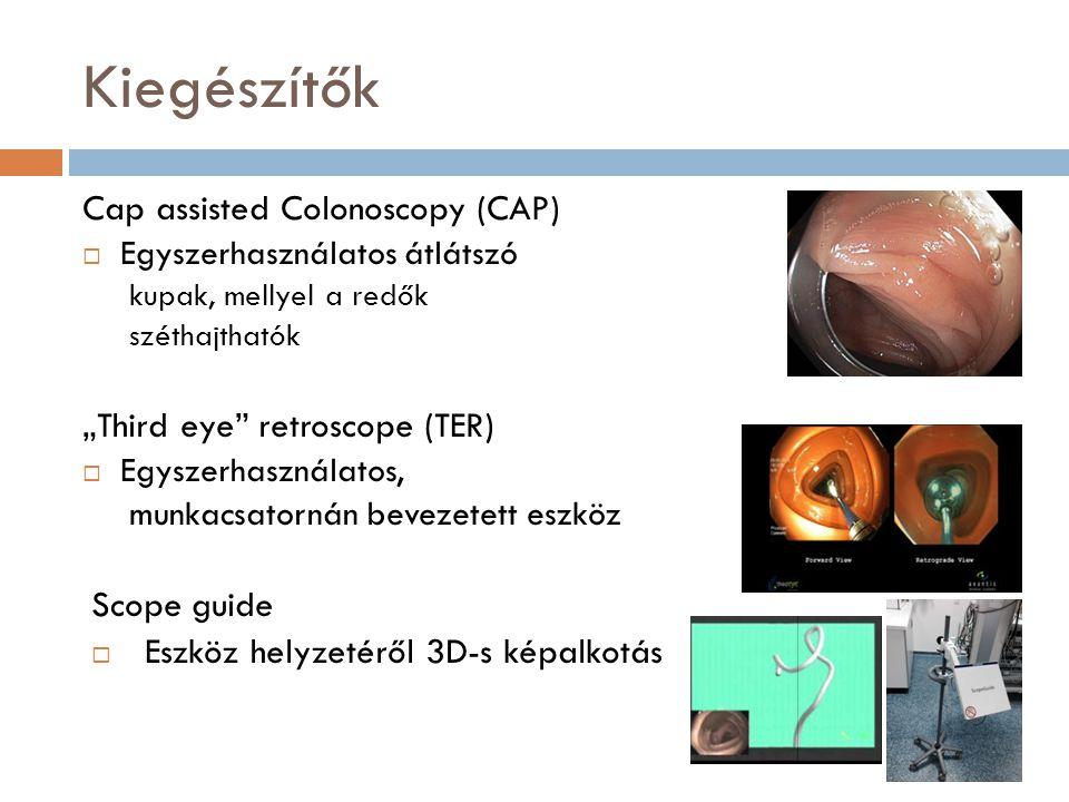 Egyéb módszerek (spektroscopos, fluorescens…)  Elastic Scattering Spectroscopia (ESS)  Raman spectroscopia  Endocytoscopia  Konfokális lézer endomikroscopia  …stb.