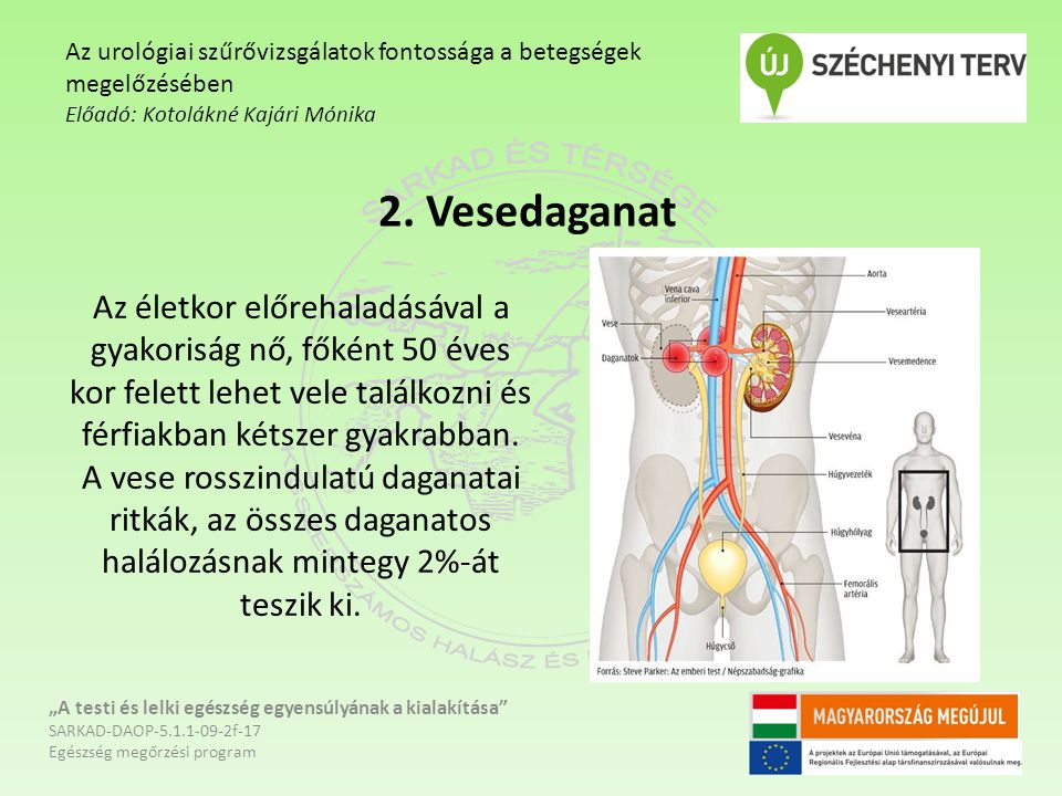 """2. Vesedaganat """"A testi és lelki egészség egyensúlyának a kialakítása"""" SARKAD-DAOP-5.1.1-09-2f-17 Egészség megőrzési program Az urológiai szűrővizsgál"""