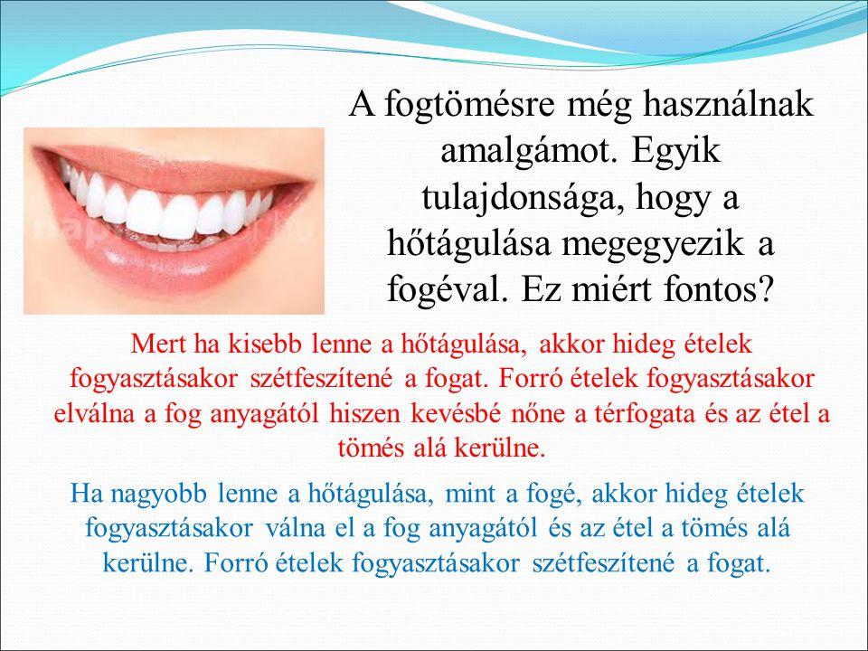A fogtömésre még használnak amalgámot.Egyik tulajdonsága, hogy a hőtágulása megegyezik a fogéval.