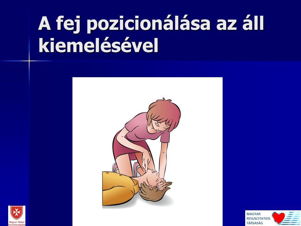 A fej pozicionálása az áll kiemelésével 2014. 11. 19. Dr. Lóczi Gerda