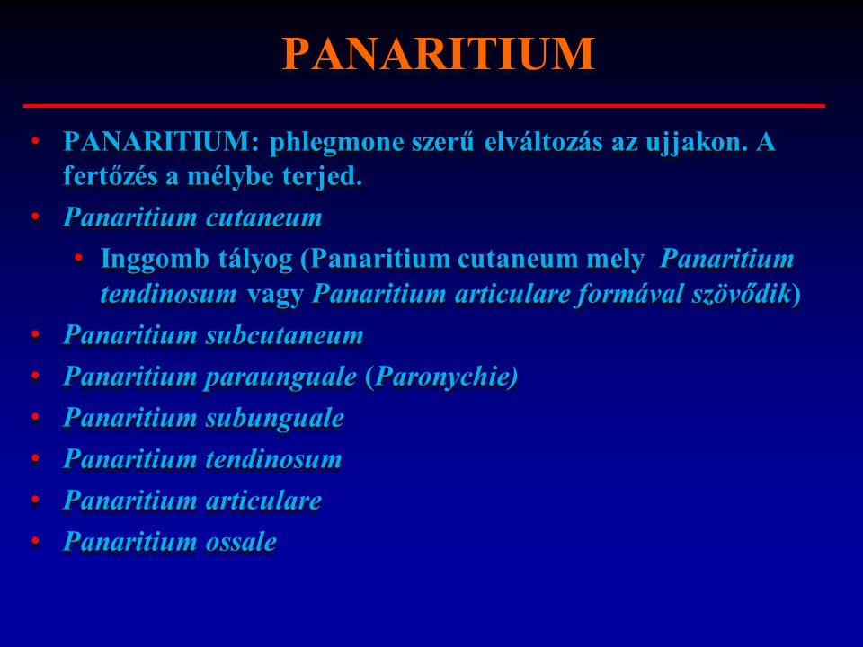 PANARITIUM: phlegmone szerű elváltozás az ujjakon. A fertőzés a mélybe terjed. Panaritium cutaneum Inggomb tályog (Panaritium cutaneum mely Panaritium