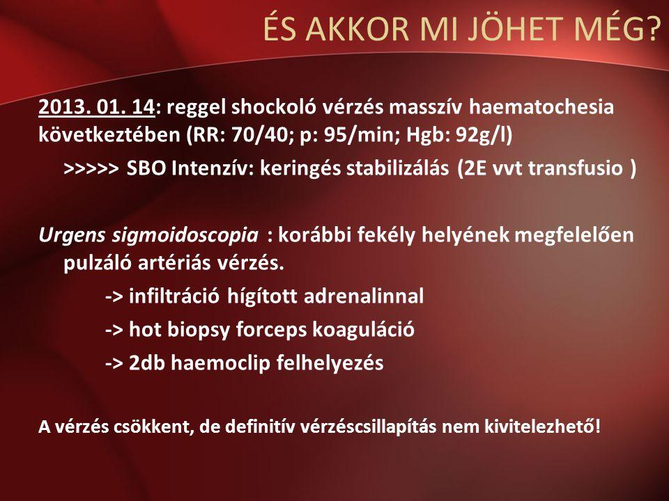 ÉS AKKOR MI JÖHET MÉG.2013. 01.
