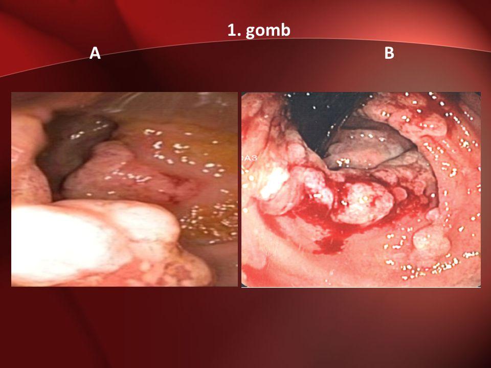 Nem várt fordulat 2013.01.05: Többször ismétlődő újabb masszív vérszékelések -> hemodinamikai instabilitás, Hbg: 60 g/l -> 2E vvt, 1E FFP transfusio Gastroscopia: gastritises kép, epés duodenogastricus reflux, cardiában kis polypoid képlet.