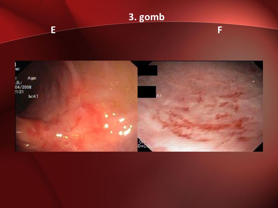 A következő endoszkópos képek közül melyikkel kapcsolatban merül fel benned a soliter rectum fekély szindróma.