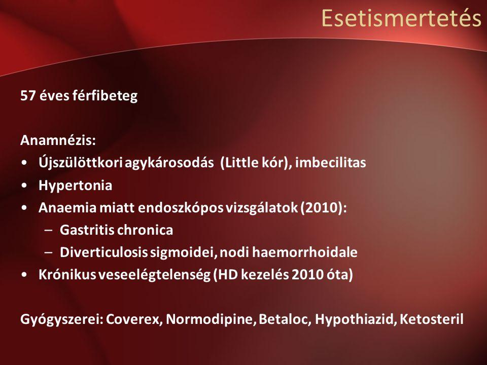 Esetismertetés 57 éves férfibeteg Anamnézis: Újszülöttkori agykárosodás (Little kór), imbecilitas Hypertonia Anaemia miatt endoszkópos vizsgálatok (2010): –Gastritis chronica –Diverticulosis sigmoidei, nodi haemorrhoidale Krónikus veseelégtelenség (HD kezelés 2010 óta) Gyógyszerei: Coverex, Normodipine, Betaloc, Hypothiazid, Ketosteril