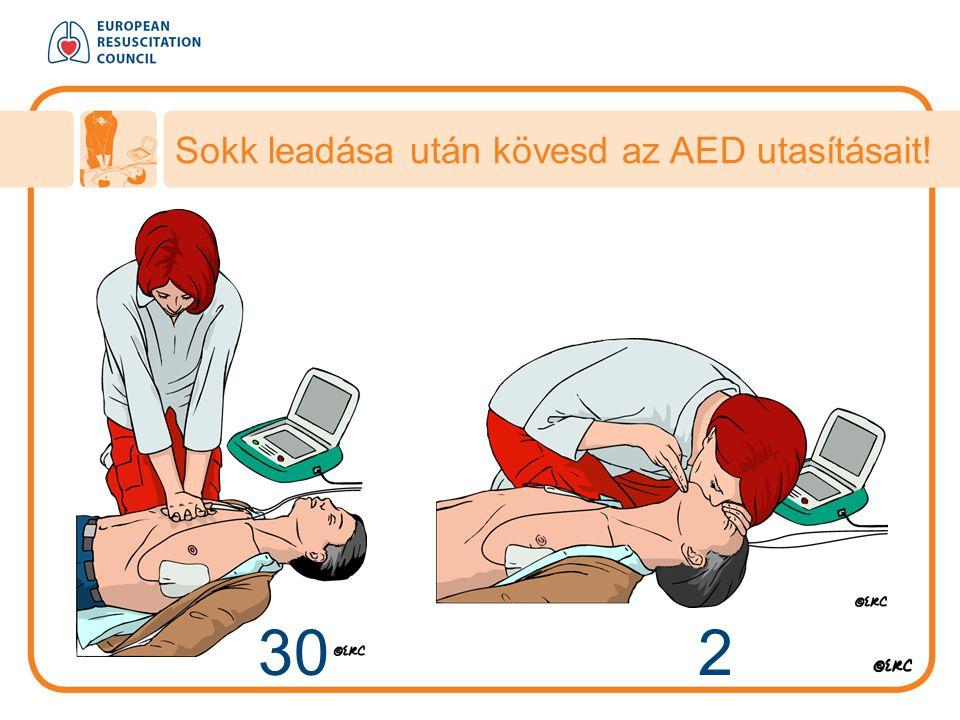 30 2 Sokk leadása után kövesd az AED utasításait!