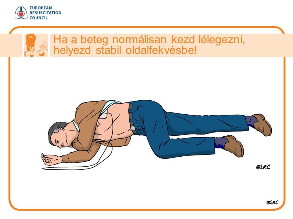 Ha a beteg normálisan kezd lélegezni, helyezd stabil oldalfekvésbe!