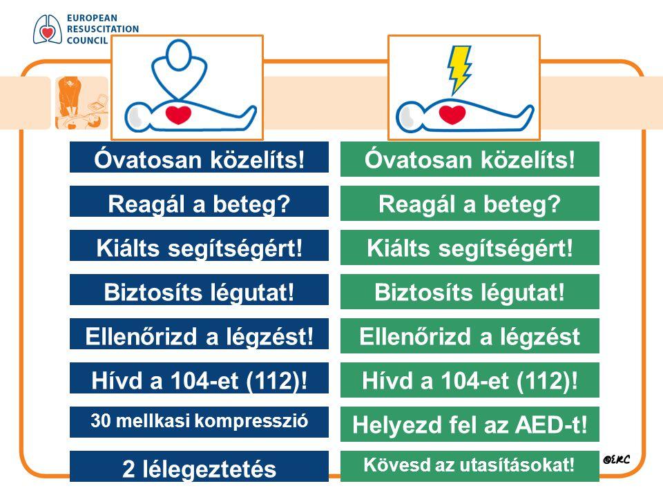 Óvatosan közelíts! Reagál a beteg? Kiálts segítségért! Biztosíts légutat! Ellenőrizd a légzést! Hívd a 104-et (112)! 30 mellkasi kompresszió 2 lélegez