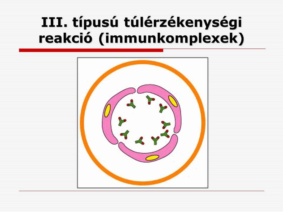 III. típusú túlérzékenységi reakció (immunkomplexek)