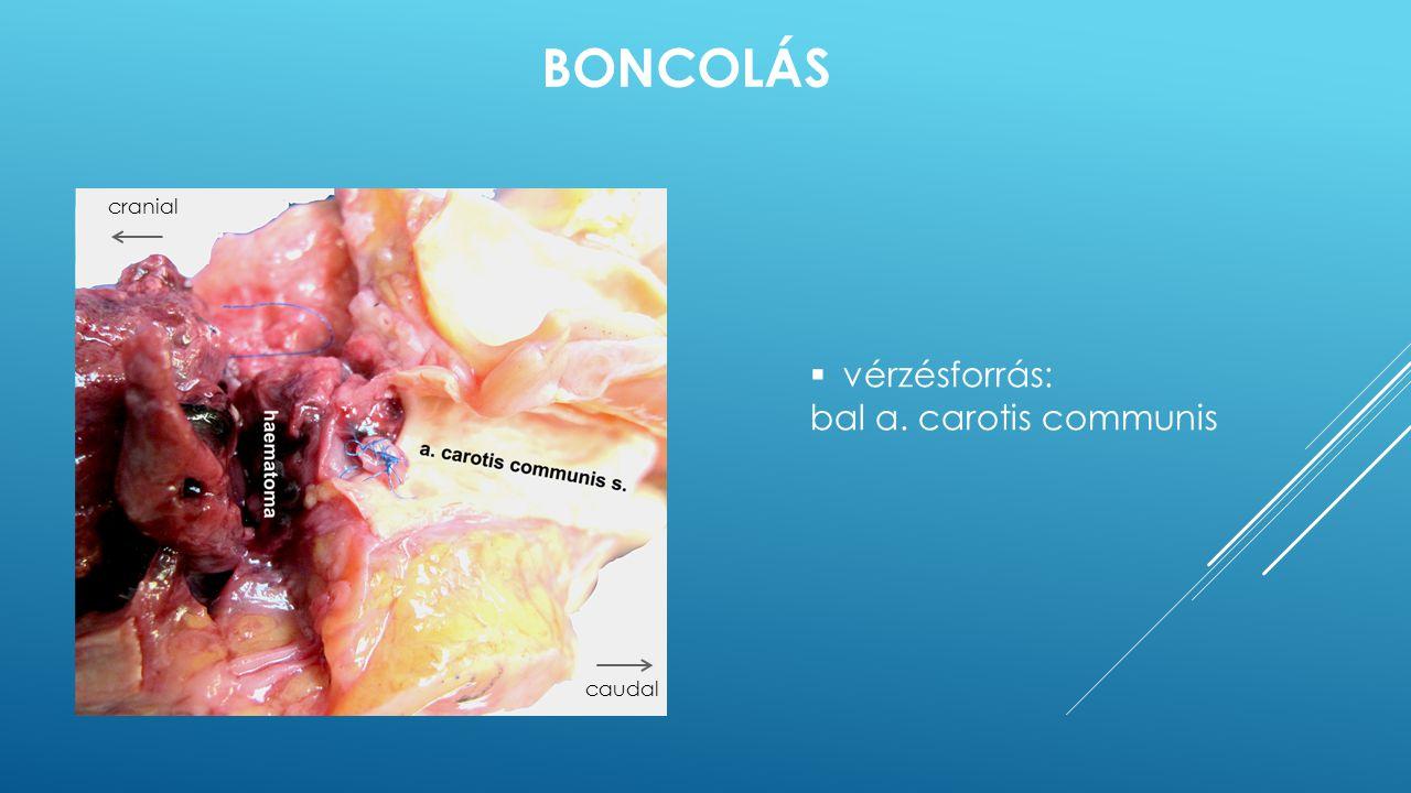  vérzésforrás: bal a. carotis communis BONCOLÁS cranial caudal