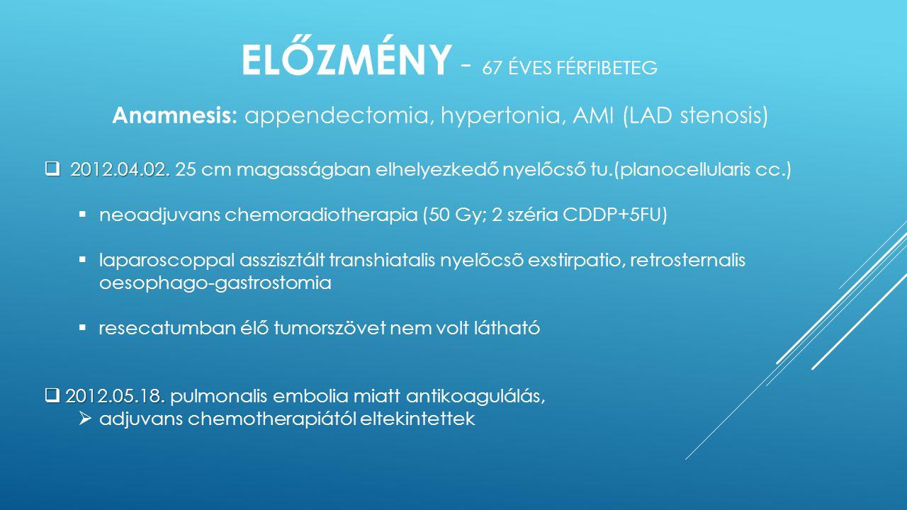 ELŐZMÉNY - 67 ÉVES FÉRFIBETEG Anamnesis: appendectomia, hypertonia, AMI (LAD stenosis)  2012.04.02.  2012.04.02. 25 cm magasságban elhelyezkedő nyel