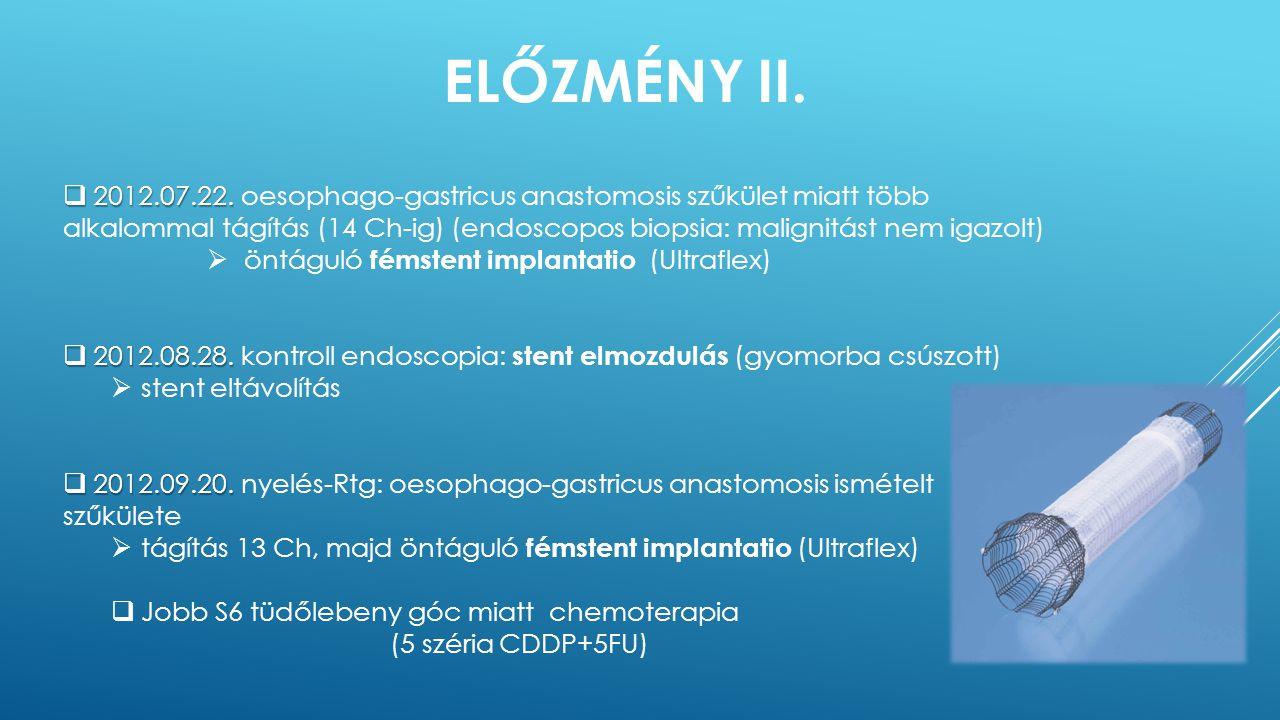 ELŐZMÉNY II.  2012.07.22.  2012.07.22. oesophago-gastricus anastomosis szűkület miatt több alkalommal tágítás (14 Ch-ig) (endoscopos biopsia: malign
