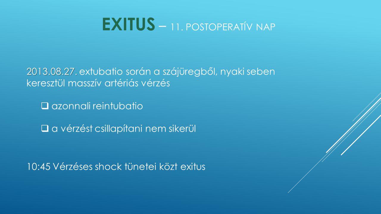 EXITUS – 11. POSTOPERATÍV NAP 2013.08.27. 2013.08.27. extubatio során a szájüregből, nyaki seben keresztül masszív artériás vérzés  azonnali reintuba