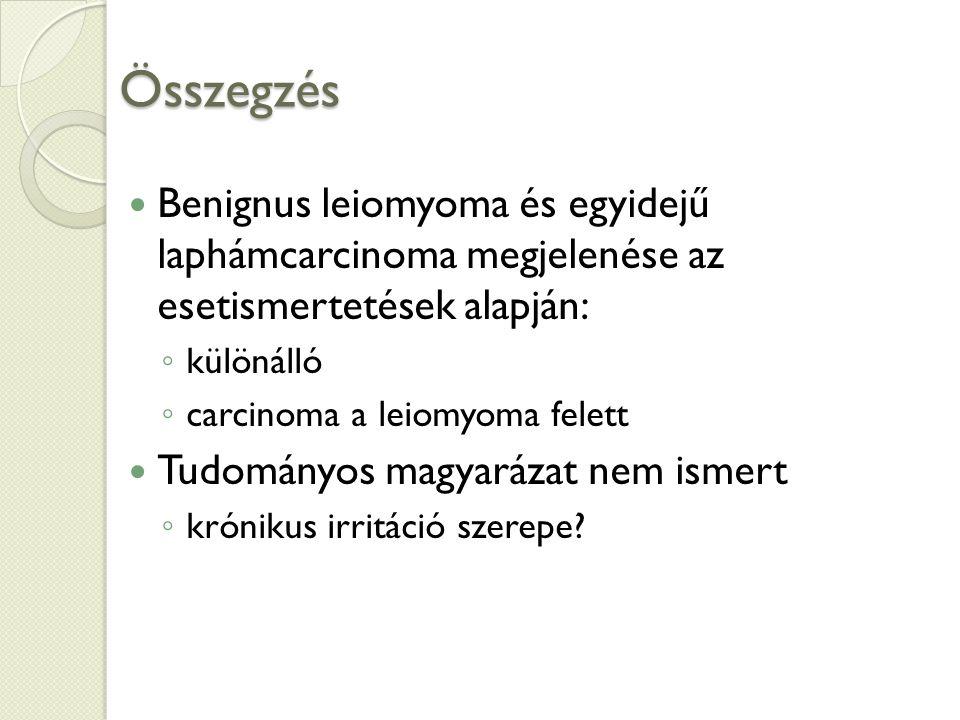 Összegzés Benignus leiomyoma és egyidejű laphámcarcinoma megjelenése az esetismertetések alapján: ◦ különálló ◦ carcinoma a leiomyoma felett Tudományos magyarázat nem ismert ◦ krónikus irritáció szerepe?