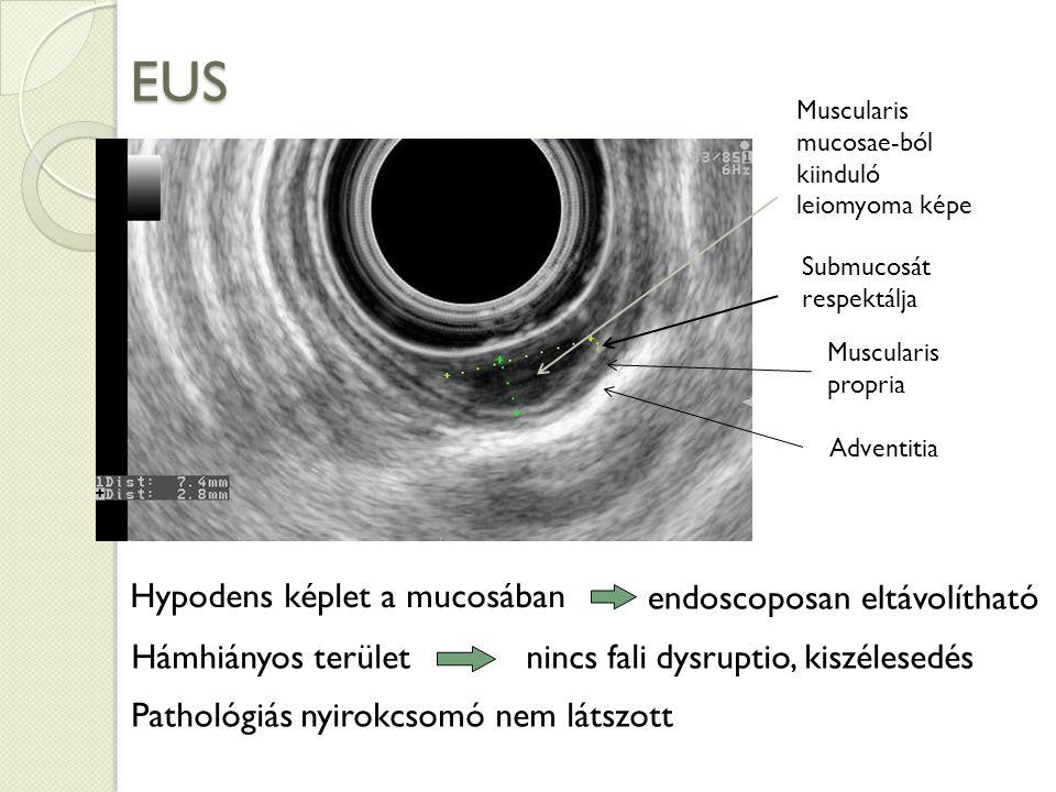 EUS Hypodens képlet a mucosában endoscoposan eltávolítható Hámhiányos terület nincs fali dysruptio, kiszélesedés Muscularis mucosae-ból kiinduló leiomyoma képe Submucosát respektálja Pathológiás nyirokcsomó nem látszott Muscularis propria Adventitia