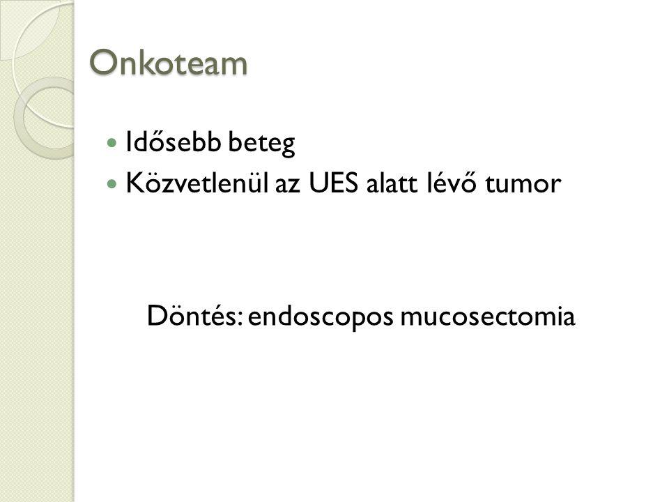 Onkoteam Idősebb beteg Közvetlenül az UES alatt lévő tumor Döntés: endoscopos mucosectomia