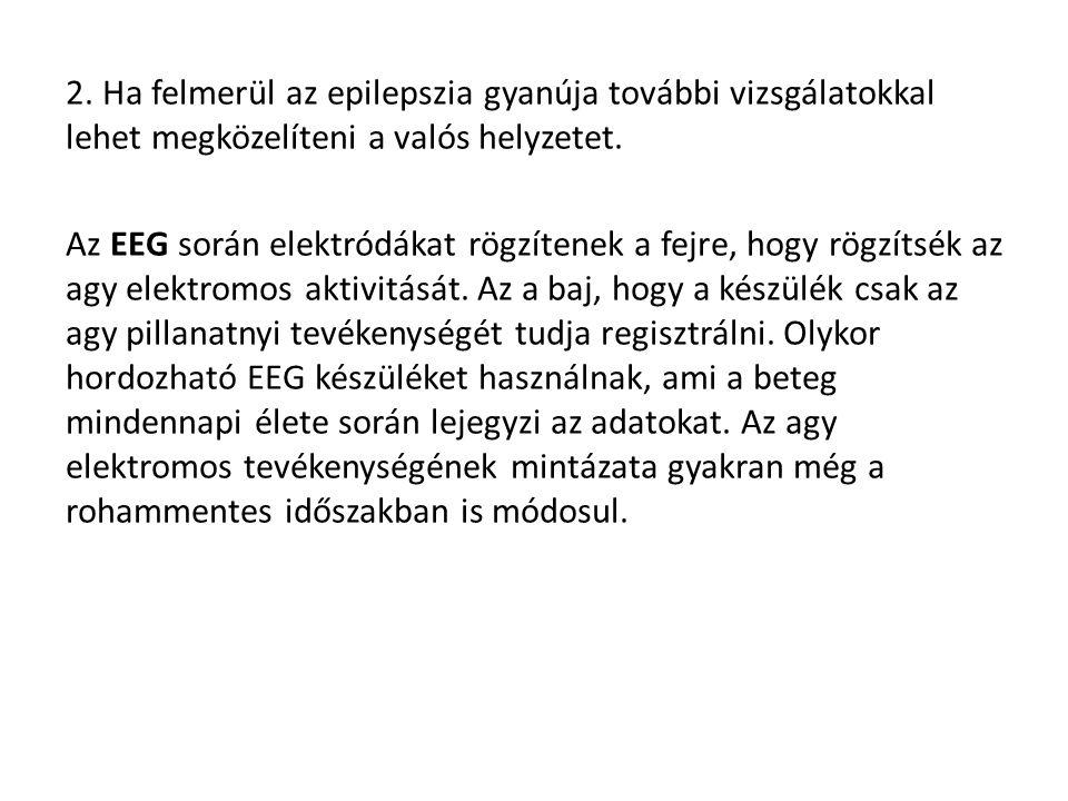 2.Ha felmerül az epilepszia gyanúja további vizsgálatokkal lehet megközelíteni a valós helyzetet.