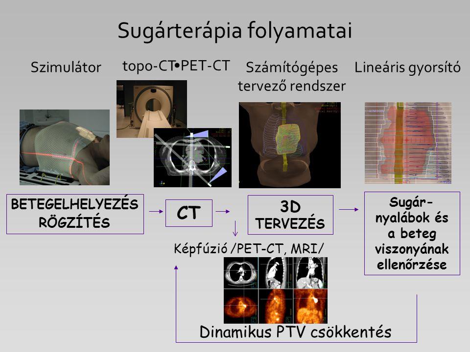 Sugár- nyalábok és a beteg viszonyának ellenőrzése Képfúzió /PET-CT, MRI/ BETEGELHELYEZÉS RÖGZÍTÉS CT topo-CT 3D TERVEZÉS Számítógépes tervező rendsze
