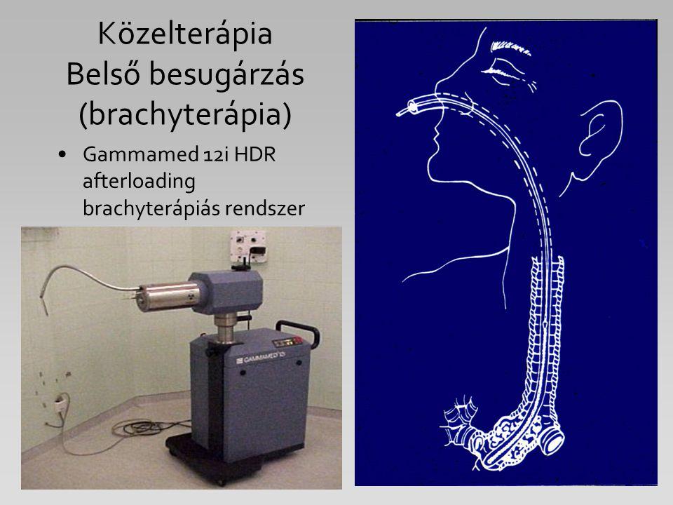 Közelterápia Belső besugárzás (brachyterápia) Gammamed 12i HDR afterloading brachyterápiás rendszer