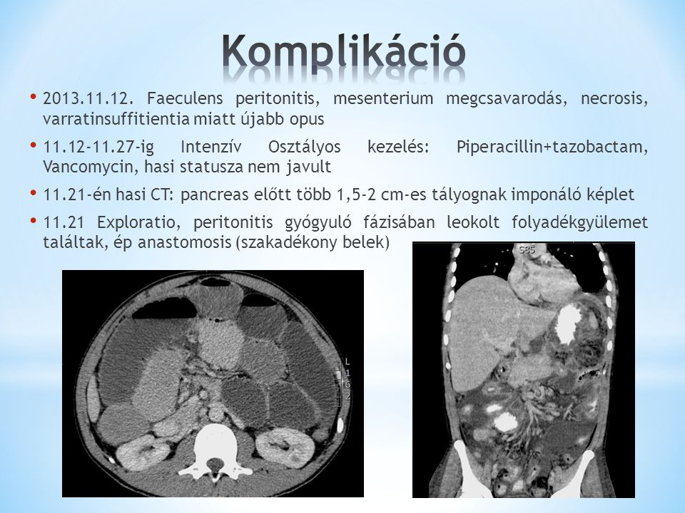 2013.11.12. Faeculens peritonitis, mesenterium megcsavarodás, necrosis, varratinsuffitientia miatt újabb opus 11.12-11.27-ig Intenzív Osztályos kezelé