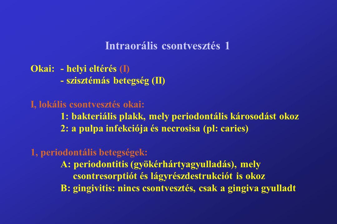 Intraorális csontvesztés 1 Okai:- helyi eltérés (I) - szisztémás betegség (II) I, lokális csontvesztés okai: 1: bakteriális plakk, mely periodontális