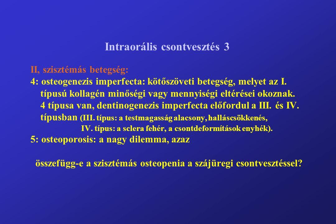 Intraorális csontvesztés 3 II, szisztémás betegség: 4: osteogenezis imperfecta: kötőszöveti betegség, melyet az I. típusú kollagén minőségi vagy menny