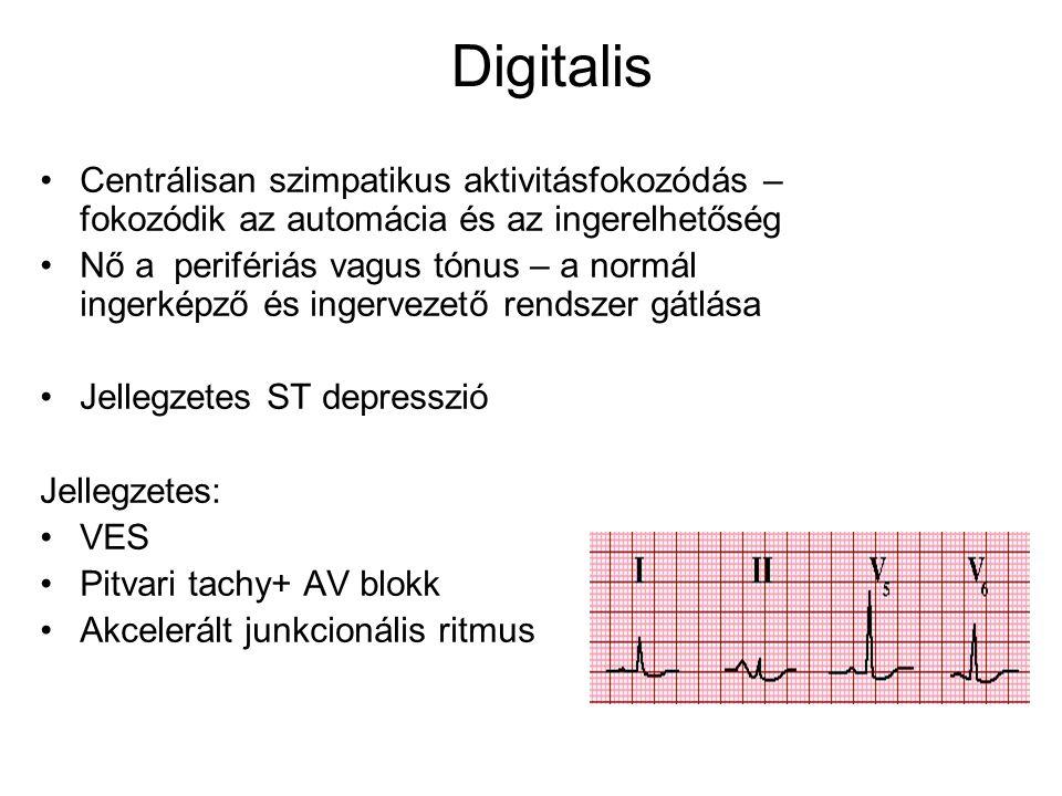Digitalis Centrálisan szimpatikus aktivitásfokozódás – fokozódik az automácia és az ingerelhetőség Nő a perifériás vagus tónus – a normál ingerképző é