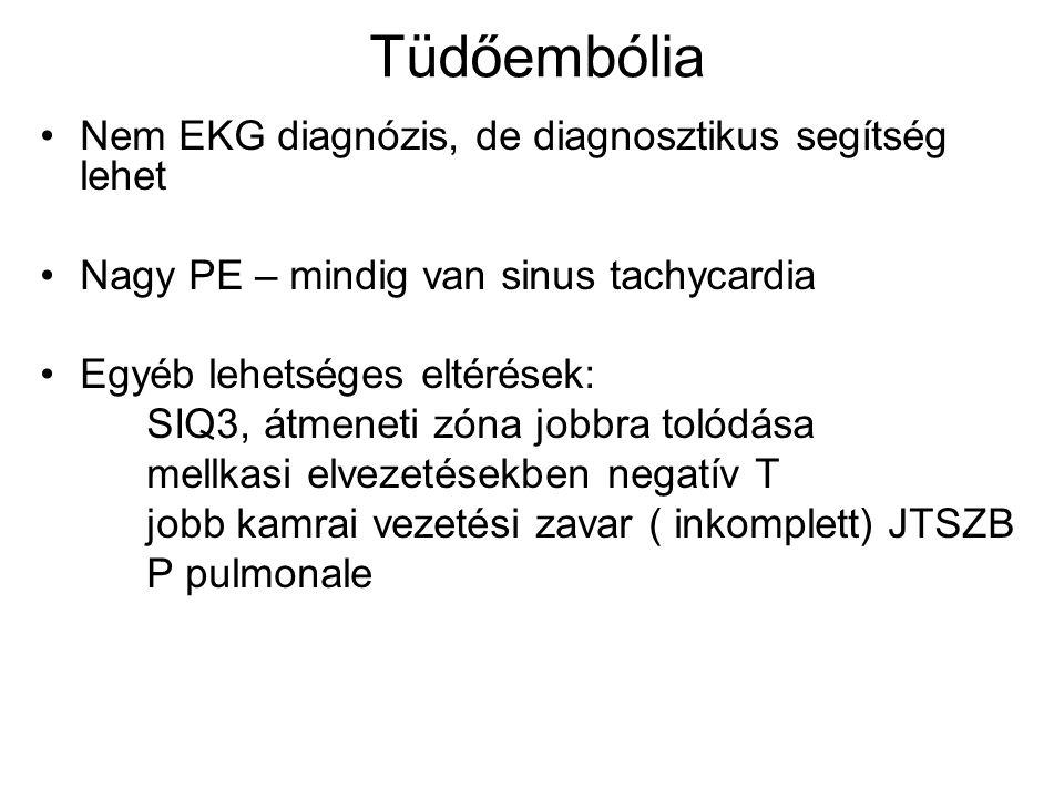 Tüdőembólia Nem EKG diagnózis, de diagnosztikus segítség lehet Nagy PE – mindig van sinus tachycardia Egyéb lehetséges eltérések: SIQ3, átmeneti zóna