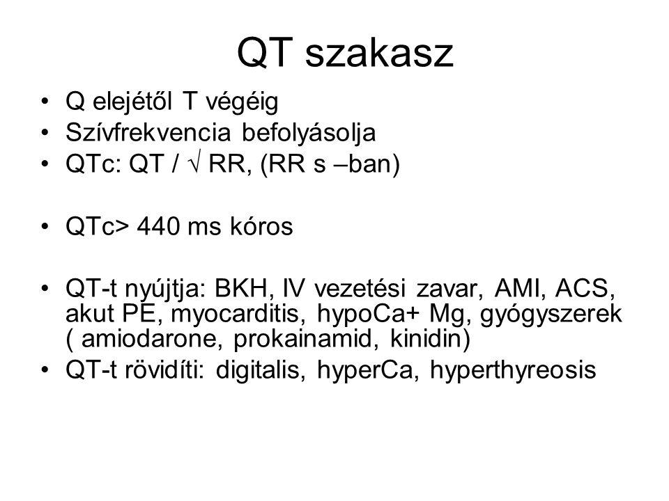 QT szakasz Q elejétől T végéig Szívfrekvencia befolyásolja QTc: QT / √ RR, (RR s –ban) QTc> 440 ms kóros QT-t nyújtja: BKH, IV vezetési zavar, AMI, AC