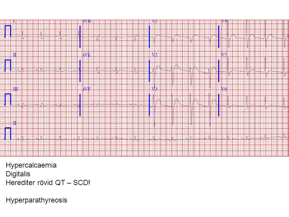 Hypercalcaemia Digitalis Herediter rövid QT – SCD! Hyperparathyreosis