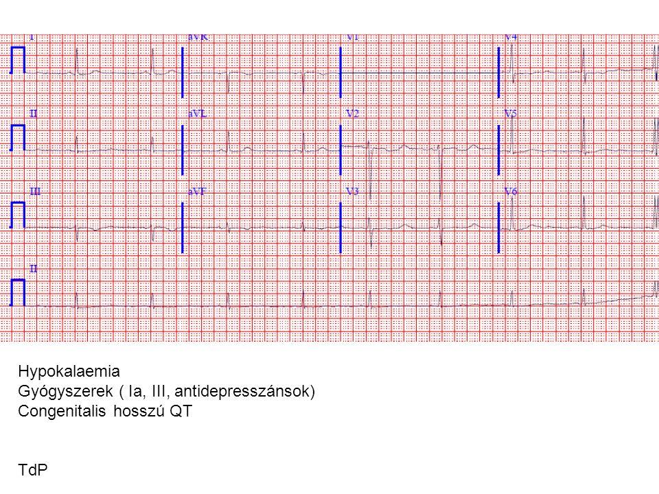 Hypokalaemia Gyógyszerek ( Ia, III, antidepresszánsok) Congenitalis hosszú QT TdP