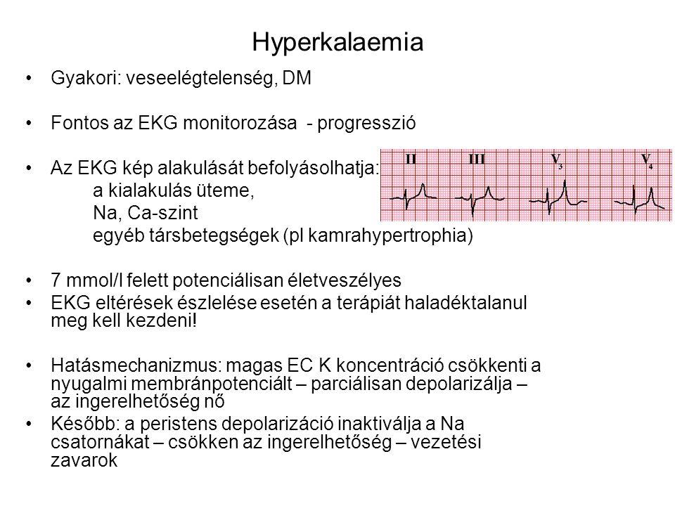 Hyperkalaemia Gyakori: veseelégtelenség, DM Fontos az EKG monitorozása - progresszió Az EKG kép alakulását befolyásolhatja: a kialakulás üteme, Na, Ca