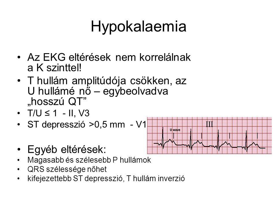 """Hypokalaemia Az EKG eltérések nem korrelálnak a K szinttel! T hullám amplitúdója csökken, az U hullámé nő – egybeolvadva """"hosszú QT"""" T/U ≤ 1 - II, V3"""