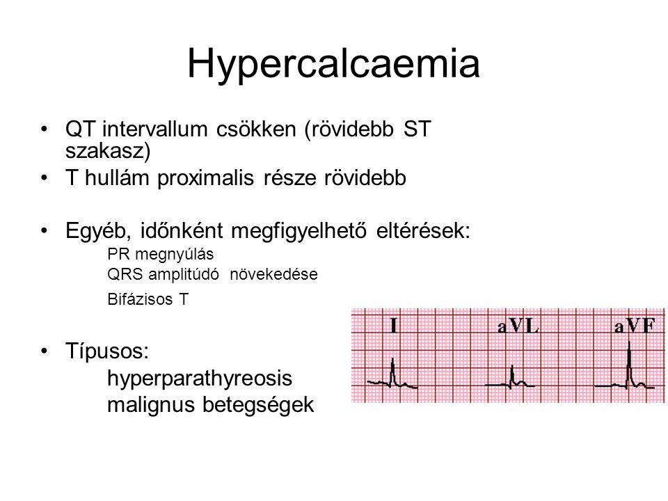 Hypercalcaemia QT intervallum csökken (rövidebb ST szakasz) T hullám proximalis része rövidebb Egyéb, időnként megfigyelhető eltérések: PR megnyúlás Q