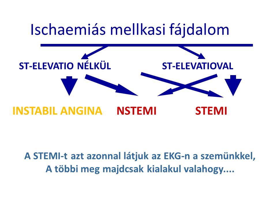 Ischaemiás mellkasi fájdalom ST-ELEVATIO NÉLKÜLST-ELEVATIOVAL INSTABIL ANGINA NSTEMI STEMI A STEMI-t azt azonnal látjuk az EKG-n a szemünkkel, A többi