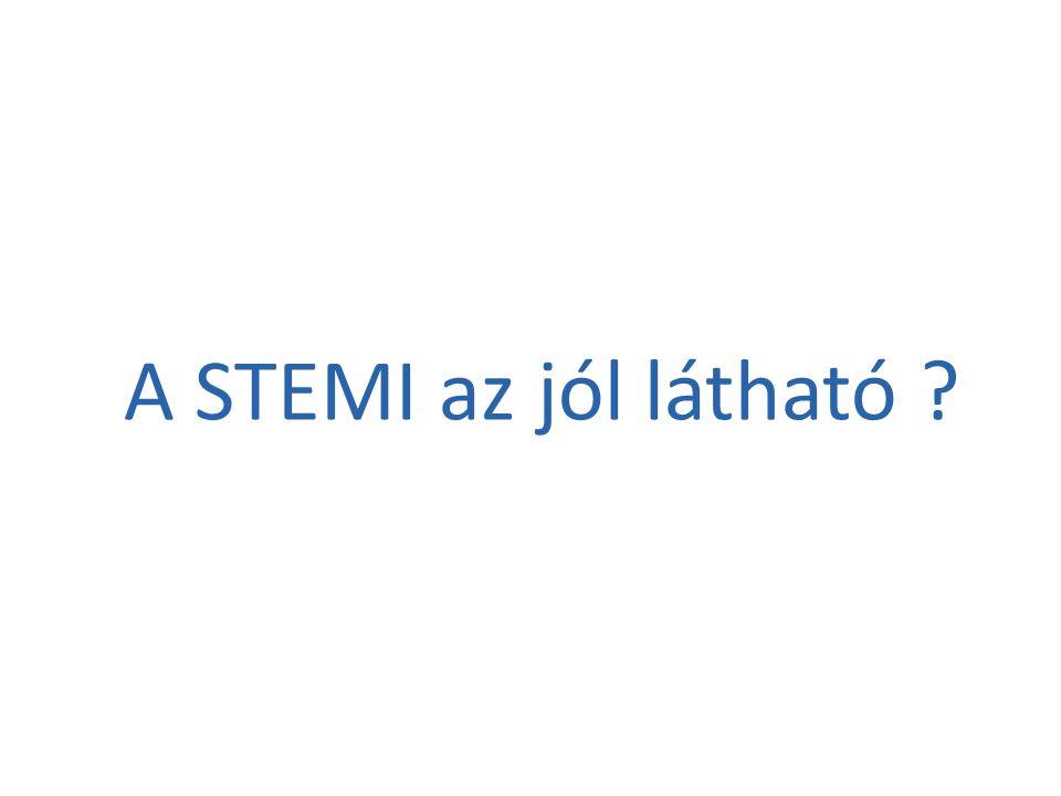 A STEMI az jól látható ?