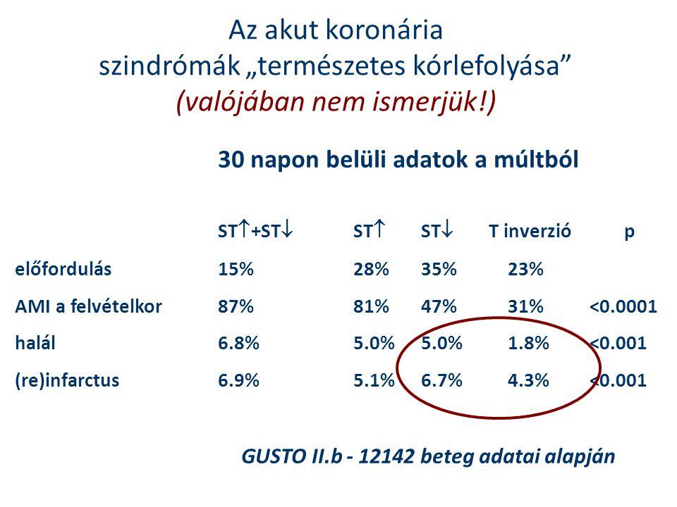 """Az akut koronária szindrómák """"természetes kórlefolyása"""" (valójában nem ismerjük!) 30 napon belüli adatok a múltból ST  +ST  ST  ST  T inverzióp el"""