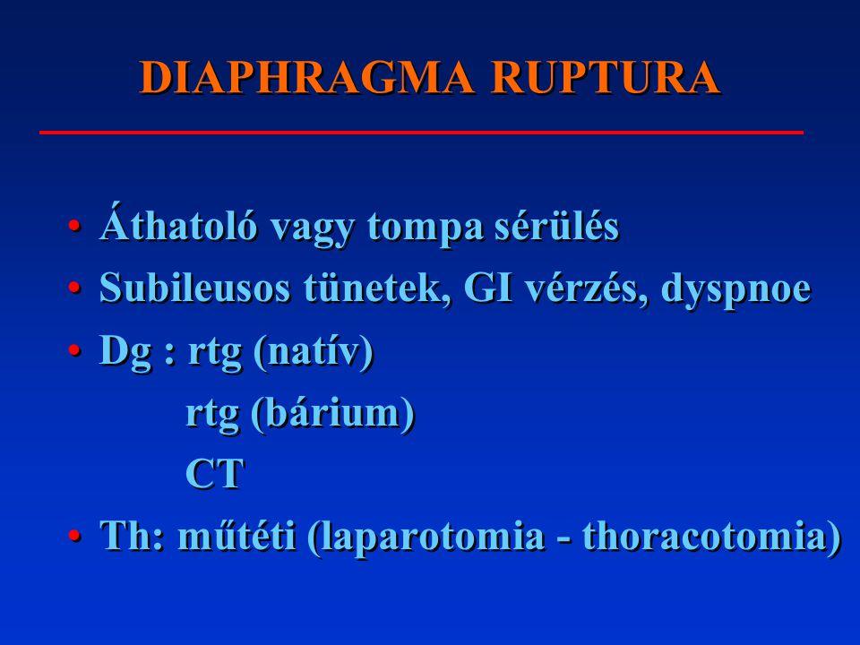 A DIAPHRAGMA TUMORAI Ritkák: mesothelioma (azbeszt), lipoma, pericardialis cysta Extrém ritka: fibrosarcoma Ritkák: mesothelioma (azbeszt), lipoma, pericardialis cysta Extrém ritka: fibrosarcoma