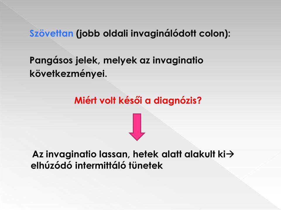 Szövettan (jobb oldali invaginálódott colon): Pangásos jelek, melyek az invaginatio következményei. Miért volt késői a diagnózis? Az invaginatio lassa