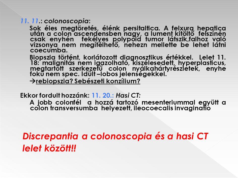 11. 11.: colonoscopia : Sok éles megtöretés, élénk persitaltica. A felxura hepatica után a colon ascendensben nagy, a lument kitöltő felszínén csak en
