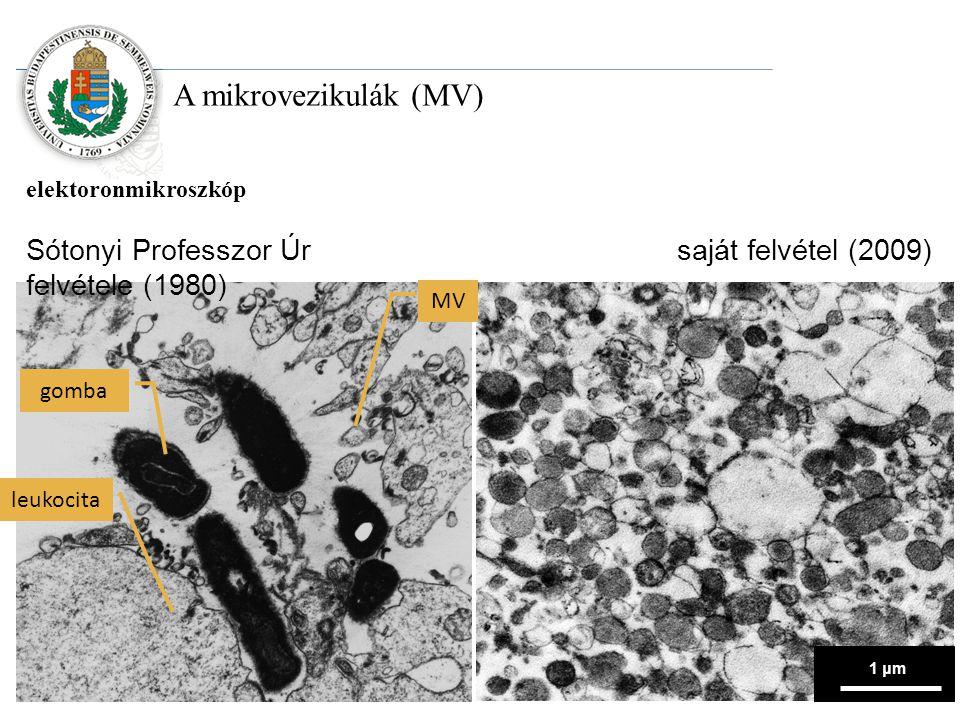 1 μm Sótonyi Professzor Úr felvétele (1980) saját felvétel (2009) gomba MV leukocita A mikrovezikulák (MV) elektoronmikroszkóp
