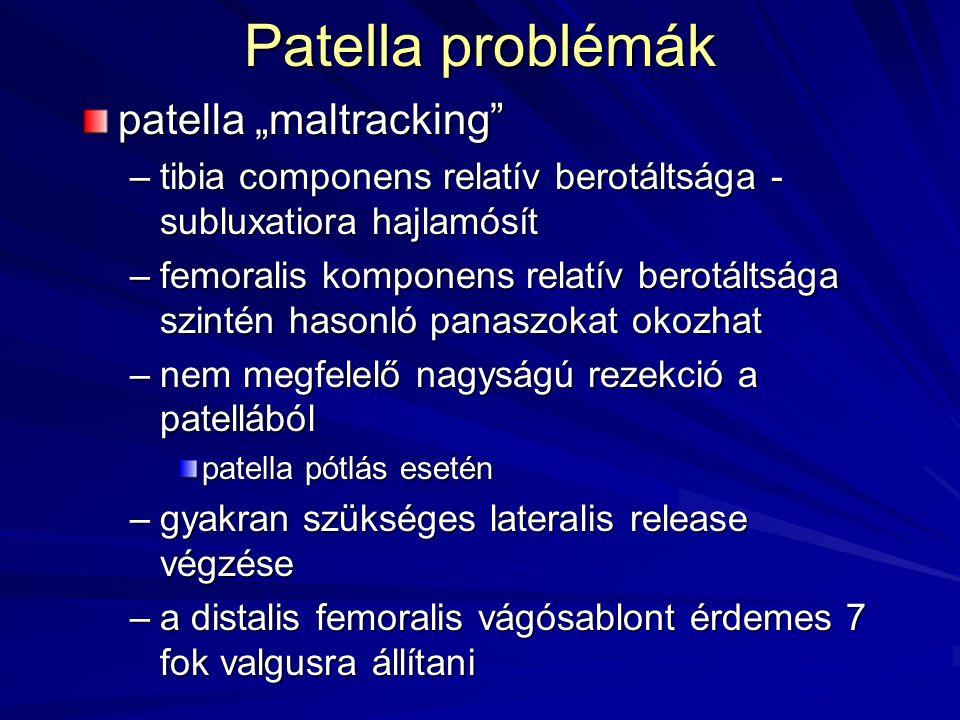 """Patella problémák patella """"maltracking"""" –tibia componens relatív berotáltsága - subluxatiora hajlamósít –femoralis komponens relatív berotáltsága szin"""