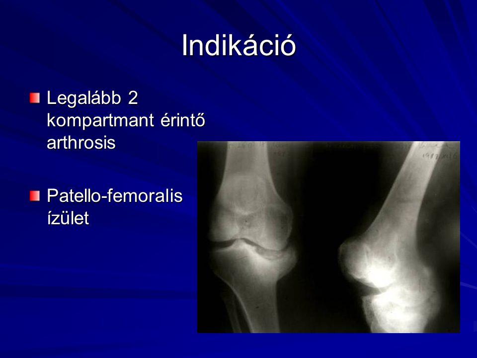 Kontraindikációk –Abszolút: aktív infectio (kivéve one-stage revisio) –Relatív: súlyos osteoporosis neuropathias arthropathia csontos ankylosis quadriceps paresis és plegia exszesszív súlytöbblet rossz általános állapot compliance