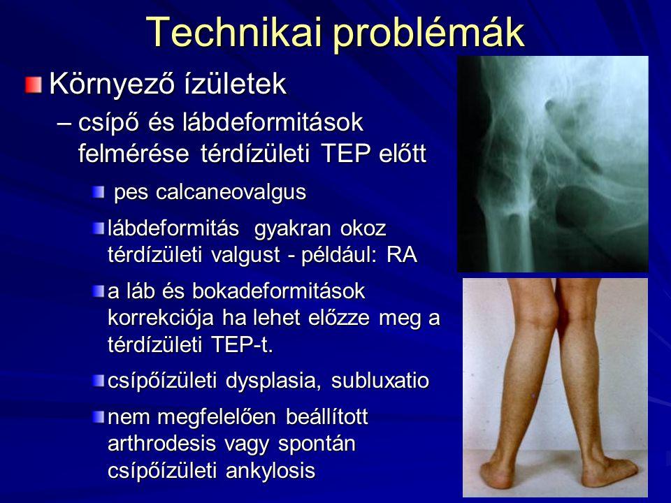 Technikai problémák Környező ízületek –csípő és lábdeformitások felmérése térdízületi TEP előtt pes calcaneovalgus pes calcaneovalgus lábdeformitás gy